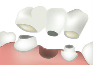 Dental Bridges | Cruson Dental Arts | Dentist Elko, NV