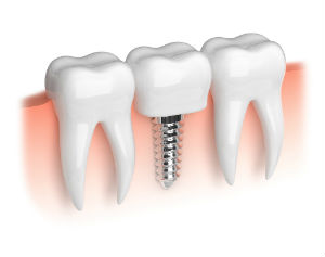 Dental Implants Available | Dr. Cruson | Dentist Wells